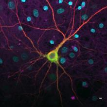 Neurone exprimant des protéines fluorescentes